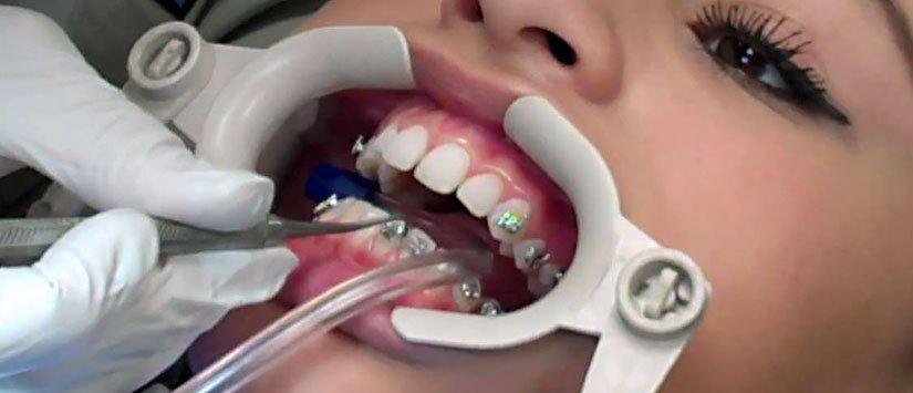 ortodondist
